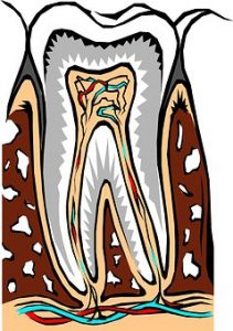 Root Canal San Mateo dentist