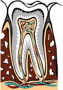 Root Canal San Mateo dentist