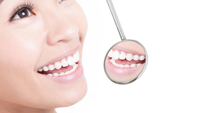 Teeth Whitening San Mateo