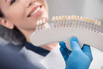 What Are Dental Veneers?